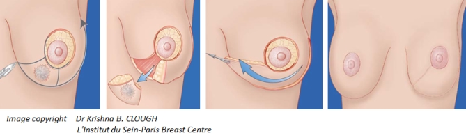breast-surgery-planning